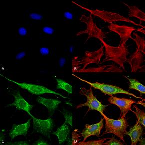 رده های سلولی: انواع ، نامگذاری ، انتخاب و نگهداری